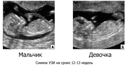 Абиссинский колодец своими руками : абиссинская скважина от А до Я 2