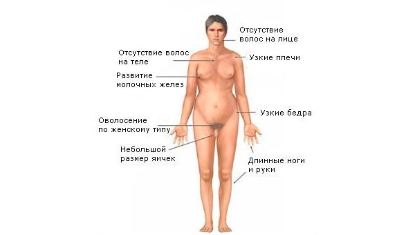 Синдром Клайнфельтера (XXY)